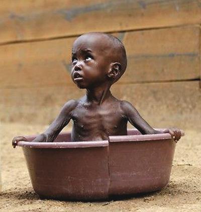 饥饿的非洲儿童